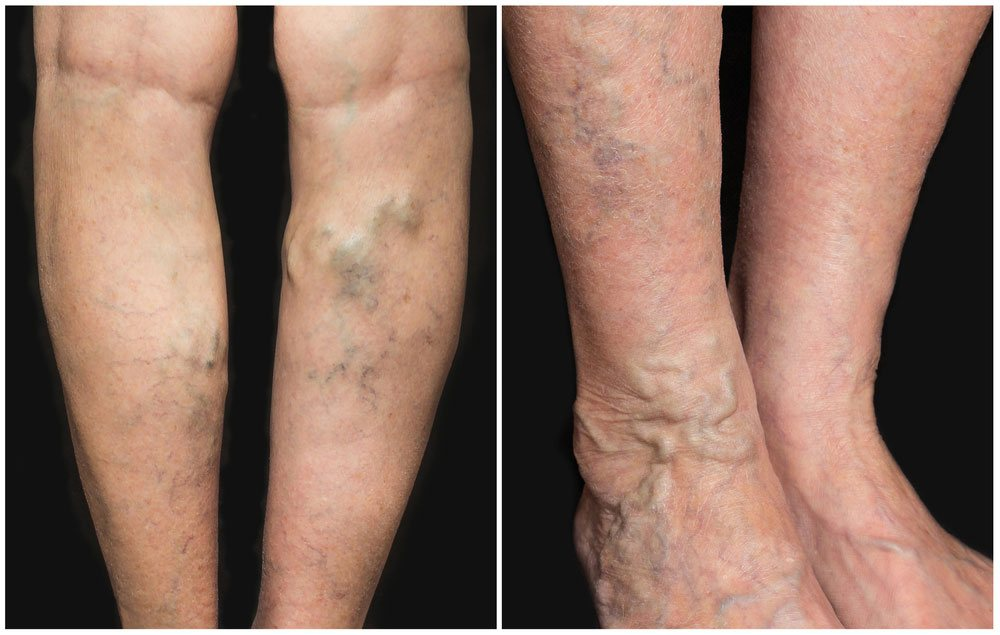 Bulging Veins Symptoms, Causes, And Treatment. Nickname Signs Of Stroke. Beach Hawaiian Signs. Arthritis Signs Of Stroke. Step Signs. Running Man Signs Of Stroke. Green Signs Of Stroke. Pension Signs Of Stroke. Bdd Signs