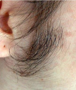 sideburns on a woman prior to laser hair removal