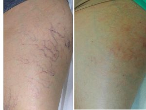 A leg before and after receiving spider vein removal