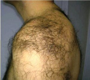 hairy shoulder of a man prior to laser hair removal
