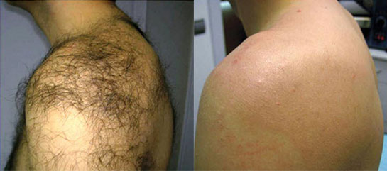 Back hair removal before and after