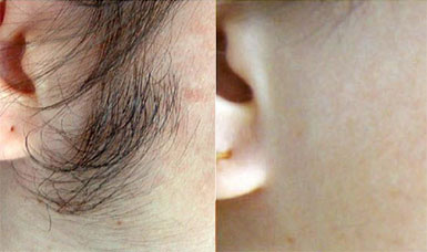 hair removal on face before and after
